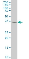 H00009212-M02A - Aurora kinase B