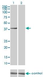 H00009212-M04 - Aurora kinase B