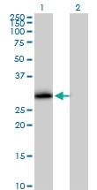 H00009218-B01P - VAMP-associated protein A (VAPA)
