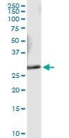 H00009218-D01 - VAMP-associated protein A (VAPA)