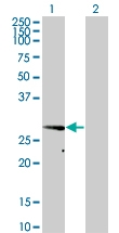 H00009218-M01 - VAMP-associated protein A (VAPA)