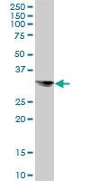 H00009482-B01P - Syntaxin 8 / STX8