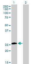 H00009482-D01P - Syntaxin 8 / STX8