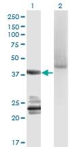 H00009630-M06 - G protein alpha 14