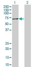 H00009647-B01 - Protein phosphatase 1F / PPM1F