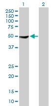 H00009647-B01P - Protein phosphatase 1F / PPM1F
