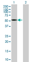 H00009784-B01P - Sorting nexin-17 (SNX17)