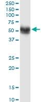 H00009784-M01 - Sorting nexin-17 (SNX17)