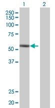 H00009807-B01 - InsP6 kinase 1 / IP6K1