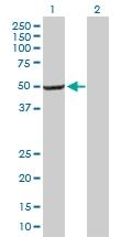 H00010053-B01P - AP1 complex subunit mu-2 / AP1M2