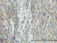 H00010059-M01 - Dynamin-1-like protein