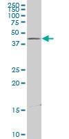 H00010121-A01 - Centractin alpha