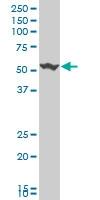 H00010203-A01 - CGRP type 1 receptor / CRLR