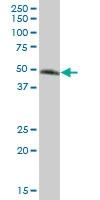 H00010223-B01 - Cell surface A33 antigen / GPA33
