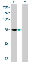 H00010232-D01P - Mesothelin