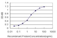 H00010274-M01 - STAG1 / Stromal antigen 1