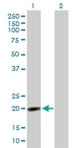 H00010360-B01P - Nucleoplasmin 3