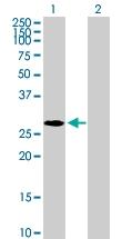 H00010361-B01P - Nucleoplasmin 2