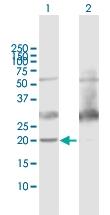 H00010476-B01P - ATP synthase subunit d
