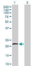 H00010476-D01P - ATP synthase subunit d