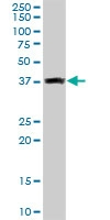 H00010539-D01P - Glutaredoxin-3 / GLRX3