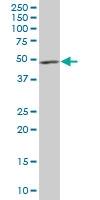 H00010540-B01P - Dynactin subunit 2