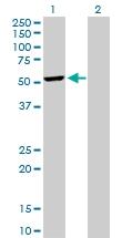 H00010540-D01P - Dynactin subunit 2