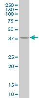 H00010661-M02 - Krueppel-like factor 1 (KLF1)