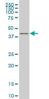 H00010661-M03 - Krueppel-like factor 1 (KLF1)