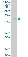 H00010661-M04 - Krueppel-like factor 1 (KLF1)