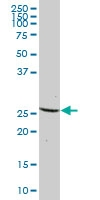 H00010671-B01P - Dynactin subunit 6
