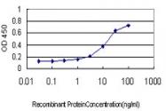 H00010717-M01 - AP4 complex subunit beta-1 / AP4B1