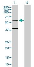 H00010768-D01P - AdoHcyase 2 / AHCYL1