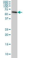 H00010768-M05 - AdoHcyase 2 / AHCYL1
