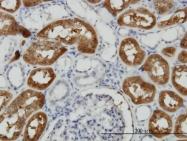 H00010841-M01 - 58K Golgi Protein