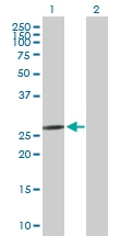 H00010882-B01P - C1q-related factor