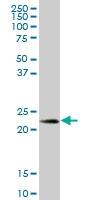 H00010935-B01 - Peroxiredoxin-3 / PRDX3
