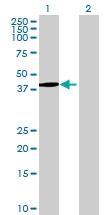 H00010947-B01 - AP3 complex subunit mu-2 / AP3M2