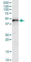 H00011061-D01 - Chondromodulin-1