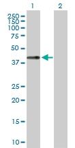 H00011061-D01P - Chondromodulin-1