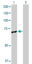 H00011146-D01P - Glomulin