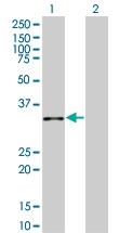 H00011199-B01 - Annexin A10 / ANXA10
