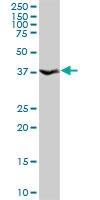 H00011199-D01P - Annexin A10 / ANXA10