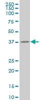 H00011199-M03 - Annexin A10 / ANXA10