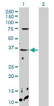 H00011261-D01P - Calcium-binding protein p22