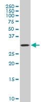 H00011316-A01 - Coatomer subunit epsilon