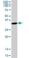 H00011316-B03 - Coatomer subunit epsilon