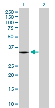 H00011343-D01P - Monoglyceride lipase