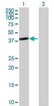H00011344-B01P - Twinfilin-2 (TWF2)