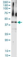 H00011344-D01 - Twinfilin-2 (TWF2)